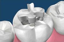 Cure dentistiche e biocompatibilità dei materiali