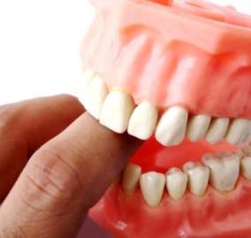 Dentisti low cost: a volte risparmiare vuol dire rischiare