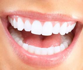 Sbiancamento dei denti professionale