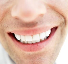 Macchie sui denti: come prevenirle e curarle